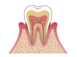 猫よだれ茶色い記事の歯肉炎の画像